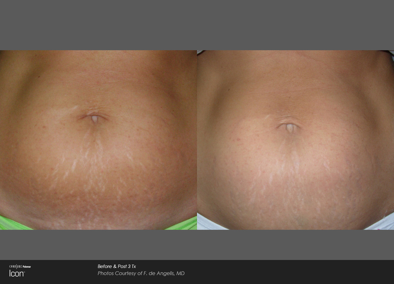 Owsley_Plastic_Surgery_Coeur_d_Alene_Idaho_Icon_Laser_Skin_Resurfacing_Procedures2