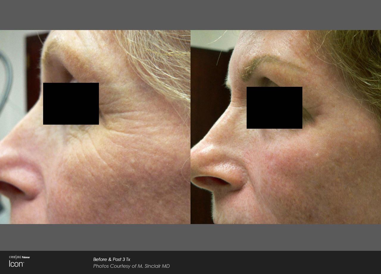 Owsley_Plastic_Surgery_Coeur_d_Alene_Idaho_Icon_Laser_Skin_Resurfacing_Procedures5