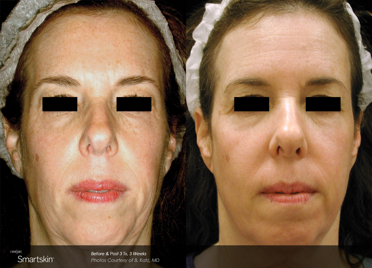 Owsley_Plastic_Surgery_Coeur_d_Alene_Idaho_SmartSkin+_Laser_Skin_Resurfacing_Procedures3