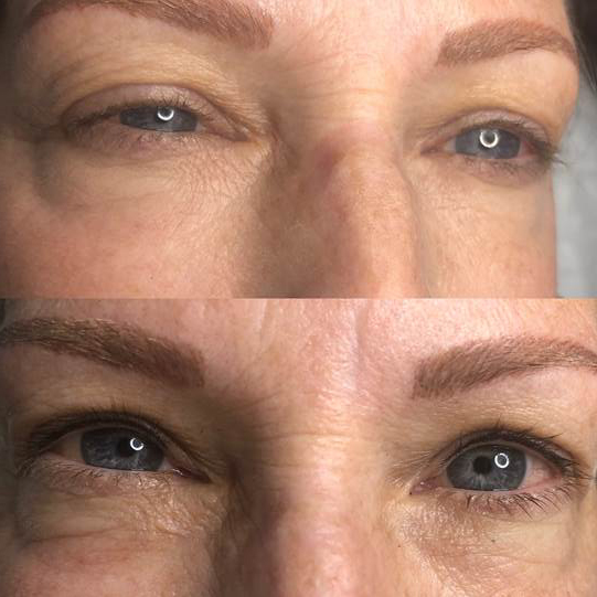 Reflections_Aesthetic_Spa_Coeur_d_Alene_Idaho_Permanent_Cosmetics_Before_and_After2