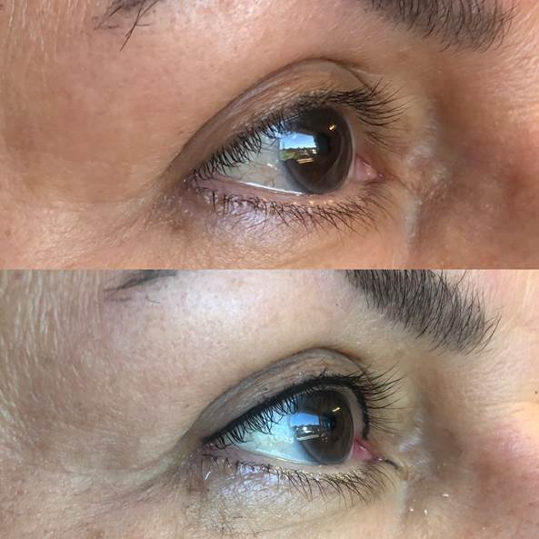 Reflections_Aesthetic_Spa_Coeur_d_Alene_Idaho_Permanent_Cosmetics_Before_and_After3