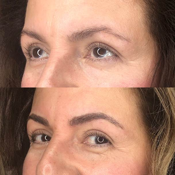 Reflections_Aesthetic_Spa_Coeur_d_Alene_Idaho_Permanent_Cosmetics_Before_and_After4