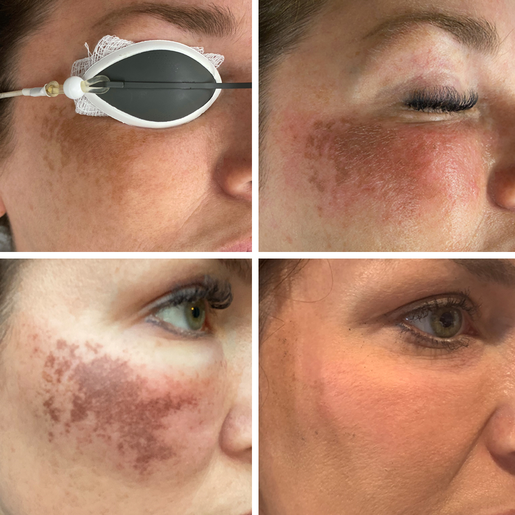 Owsley_Plastic_Surgery_Coeur_d_Alene_Idaho_IPL_Treatment_Before_And_After_1024x1024