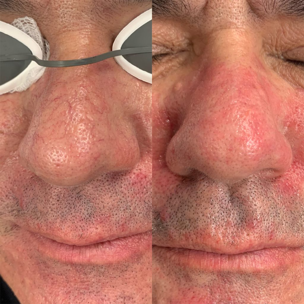 Owsley_Plastic_Surgery_Coeur_d_Alene_Idaho_IPL_Laser_Treatment_Before_and_After_1-1